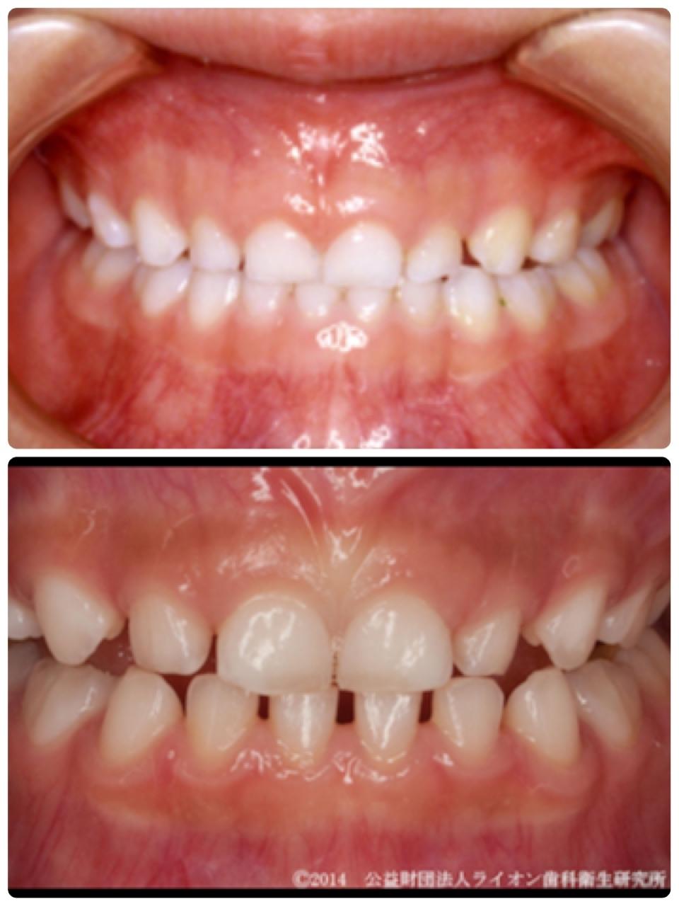 っ 歯 すき 乳歯