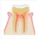初期歯周病