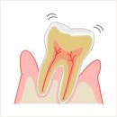末期歯周病
